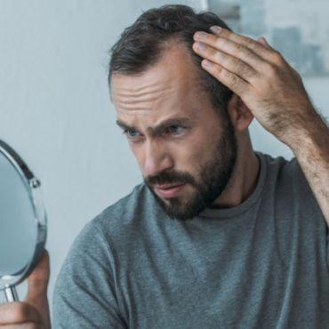serenoa prostata e calvizie